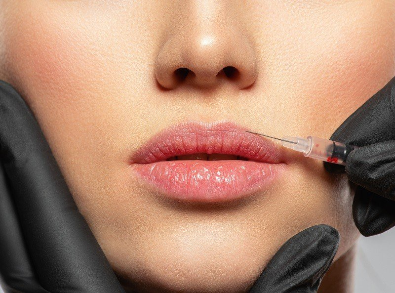caucasian woman getting botox cosmetic injection